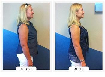 Chiropractic St Petersburg FL Jeanie